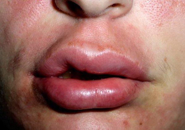 припухание губ