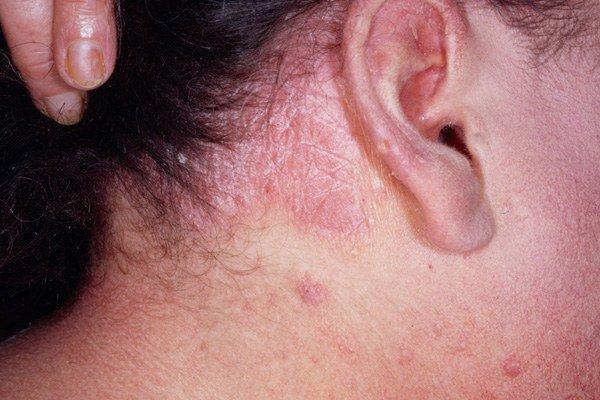 Аллергия на рис у ребенка