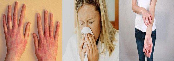 симптомы аллергии на масло