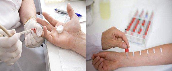 анализ крови, аллергопробы