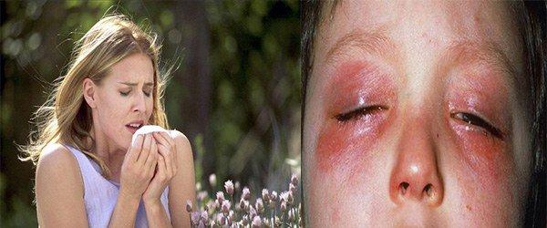 поллиноз, аллергический конъюктивит