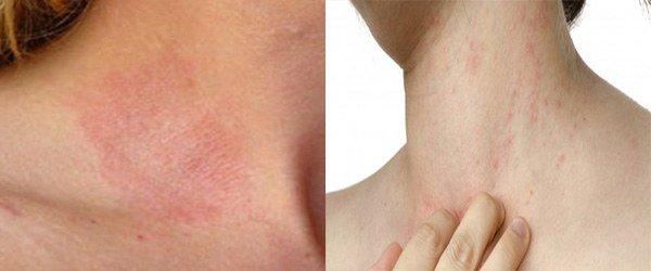 Как проявляется аллергия на духи