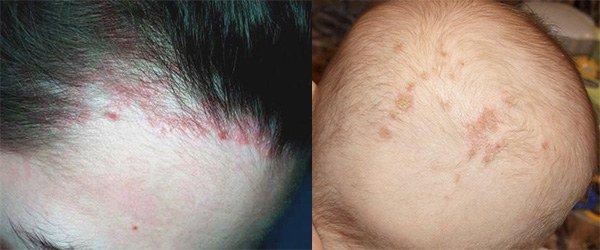 признаки аллергии на голове