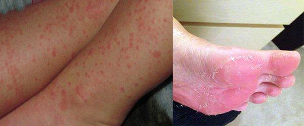 Аллергия на ступнях ног