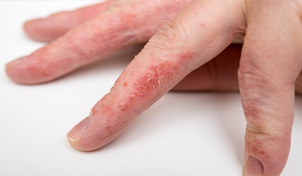 проявление аллергии на пальцах рук