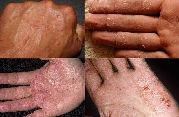проявление аллергии на руках