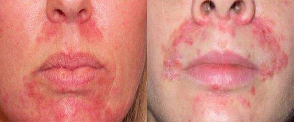 распространение аллергической сыпи