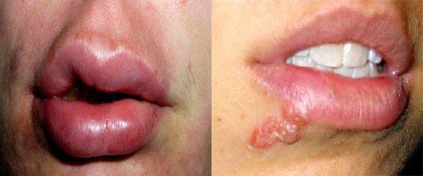 признаки аллергии вокруг рта