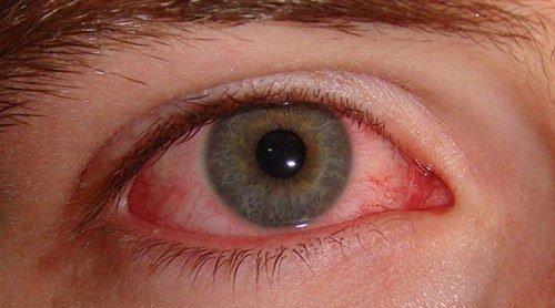 инфекционная форма заболевания глаз
