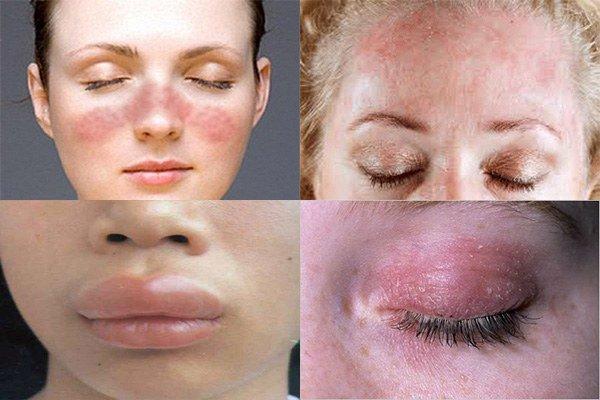 проявление аллергии на косметику