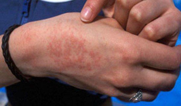 проявление аллергии на латекс на руках