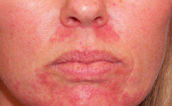 дерматоз при аллергии на сперму
