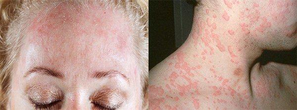 сыпь на лице и шее при аллергии на мороз