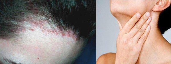 Бывает ли аллергия на хну