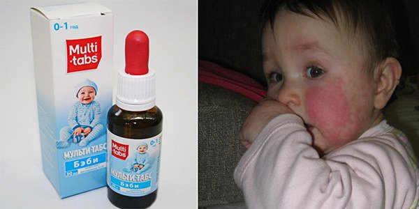 аллергия на «Мульти-табс Бэби»