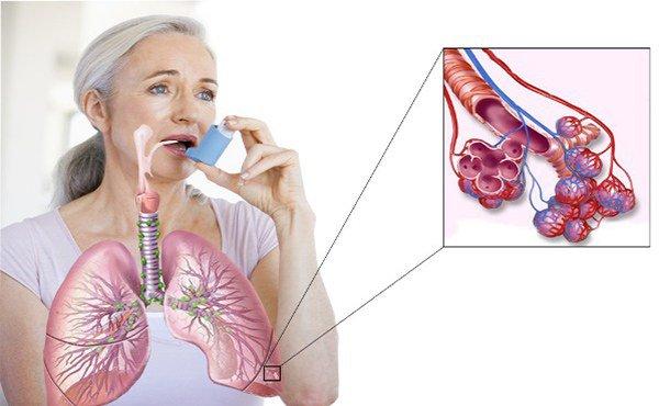 осложнения бронхиальной астмы