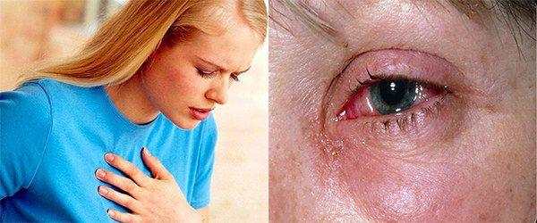удушье и слезотечение при аллергии