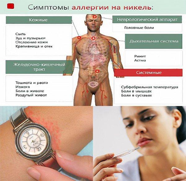 симптомы аллергии на никель