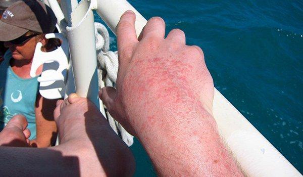 аллергия на солнце в области рук