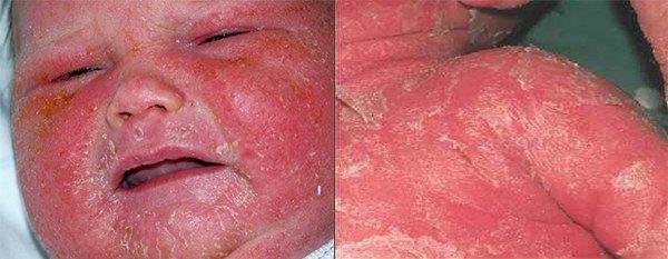 проявление эксфолиативного дерматита