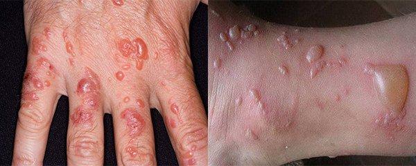 диабетическая форма буллезного дерматит