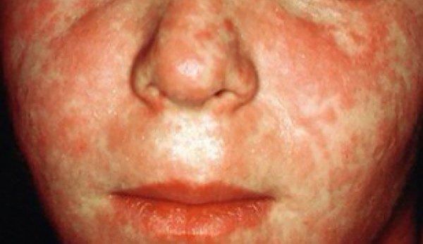 Инфекционный дерматит у детей