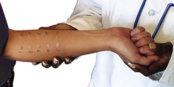 проведение кожных аллергопроб