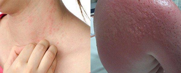 проявление аллергии а солярий