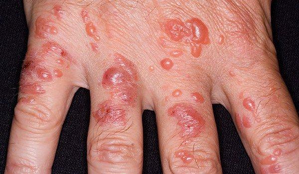 Буллезный вид контактного дерматита