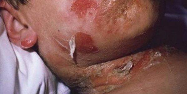Стафилококковый симптом «ошпаренной кожи»