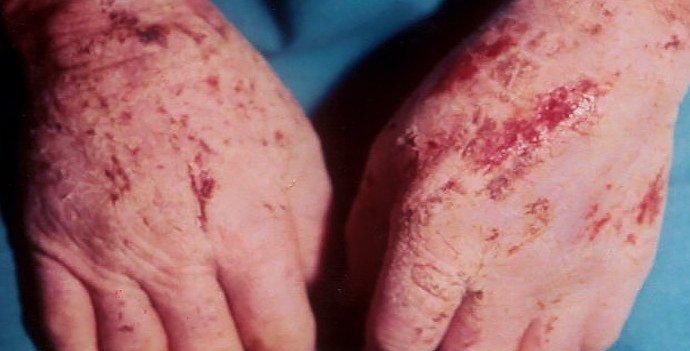 актинический дерматит на руках