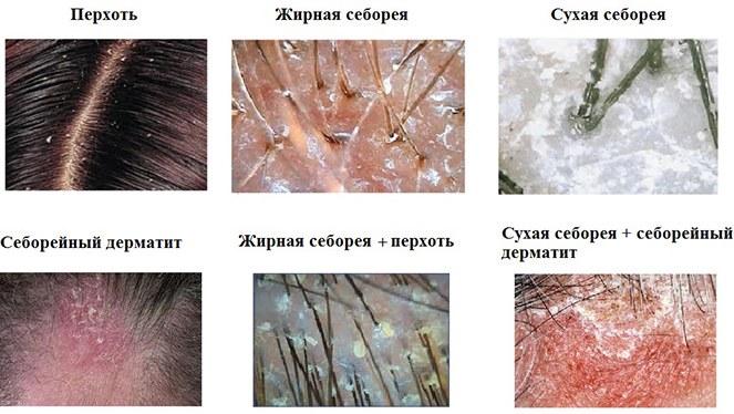 разновидности себореи на голове