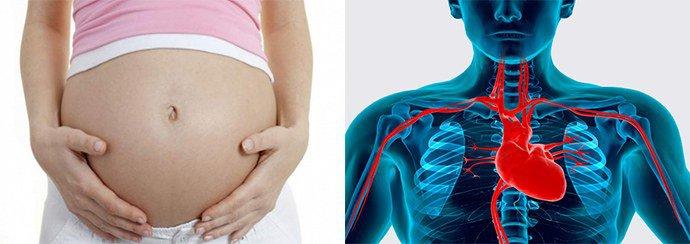 беременность, заболевания сердечной системы