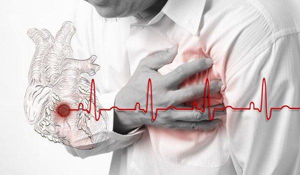 опасность возникновения инсульта, инфаркта