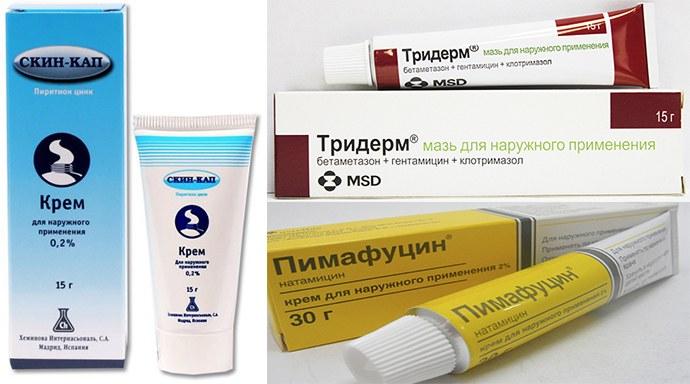 крема от себорейного дерматита на голове