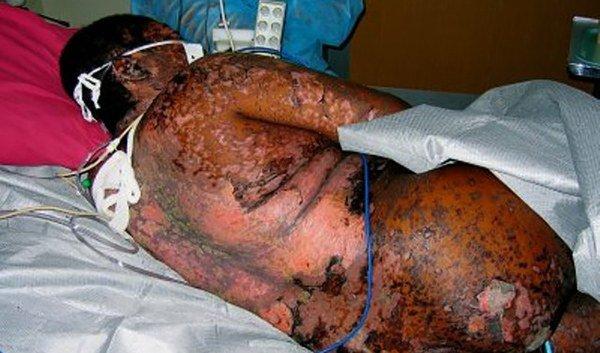 разрушение кожных тканей при синдроме Лайелла