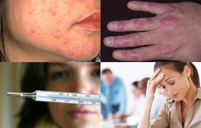 общие признаки хронического дерматита