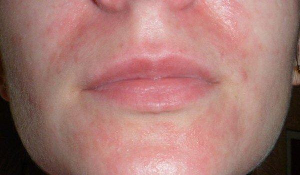 околоротовой дерматит