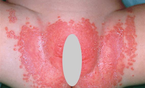 пеленочный дерматит — интертриго