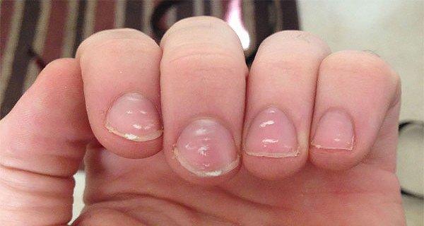 Народные методы лечения псориаза ногтей