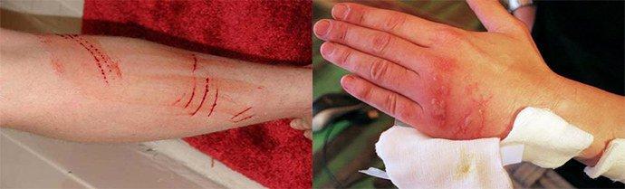 механические поражения кожи