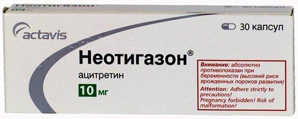 таблетки от псориаза Неотигазон