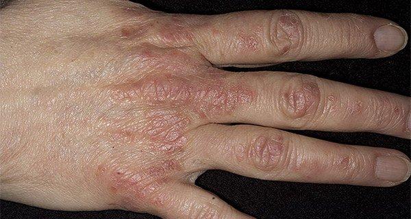 псориаз на кистях рук