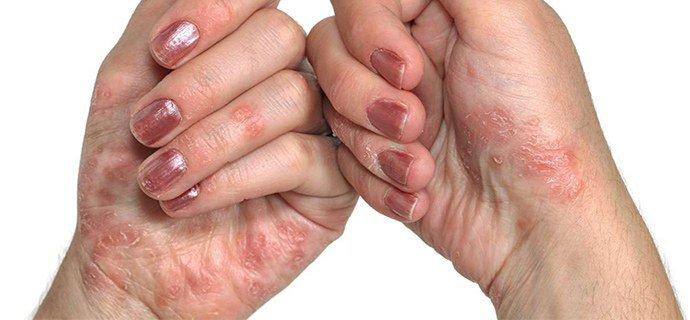 прогрессирующая стадия псориаза на руках