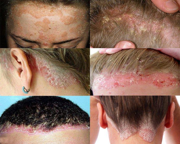Псориаз кожи головы фото