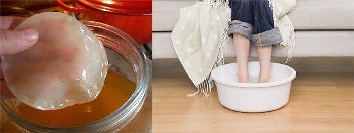 лечение псориаза чайным грибом