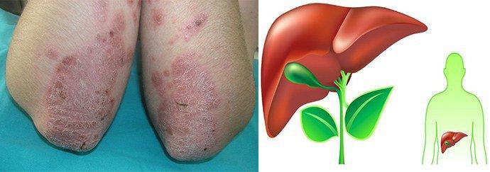 дезинтоксикация организма при псориазе