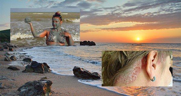 лечение псориаза на Азовском море
