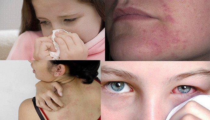 Лекарства от аллергии список