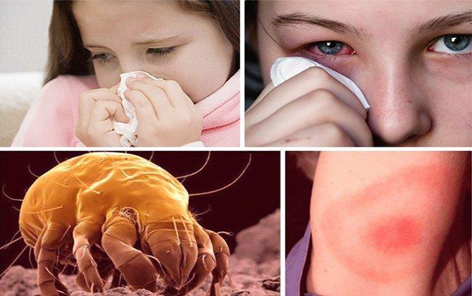 аллергия на постельного пылевого клеща
